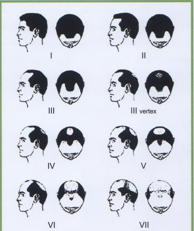 ریزش موی طرح مردانه و زنانه 1422275516151