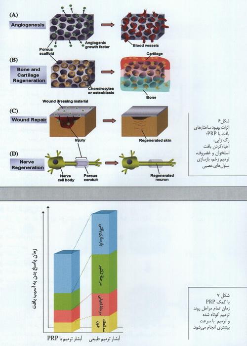 P.R.Pیا پلاسما درمانی یا سلول درمانی 1422281715311