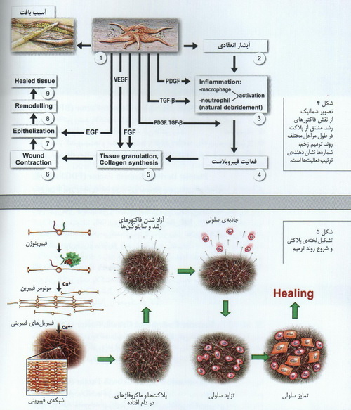 P.R.Pیا پلاسما درمانی یا سلول درمانی 1422281715423