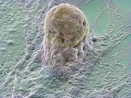 P.R.Pیا پلاسما درمانی یا سلول درمانی 1422281997093