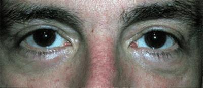 تیرگی زیر چشم کربوکسی تراپی کربوکسی تراپی (CARBOXY THERAPY) چیست؟ 1422340756651