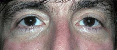 تیرگی زیر چشم کربوکسی تراپی کربوکسی تراپی (CARBOXY THERAPY) چیست؟ 1422340756682