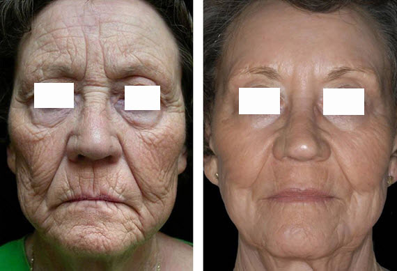 رفع افتادگی پوست با لیزر