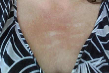 میکرونیدلینگ میکرونیدلینگ MICRO NEEDLING ترکهای پوستی 1422351271831