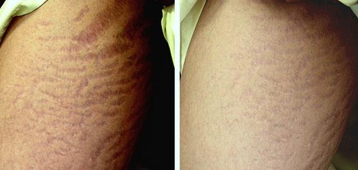 میکرونیدلینگ میکرونیدلینگ MICRO NEEDLING ترکهای پوستی 14223512723