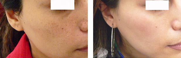 لیزر لک و ککهای پوستی 1422353847694