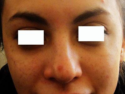لیزر لک و ککهای پوستی 1422353847735