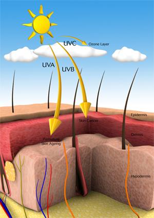 ضد آفتاب ضد آفتاب 1422354099812
