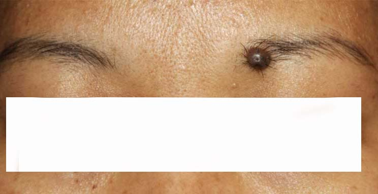 لیزر زوائد پوستی 142235500375