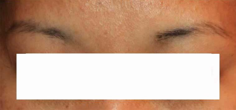 لیزر زوائد پوستی 1422355132251