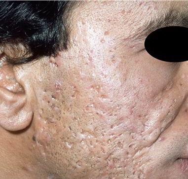آسیب پوستی آسیب پوستی 1422355484452