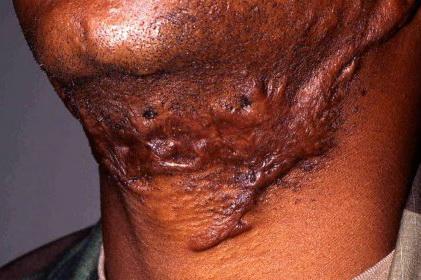 آسیب پوستی آسیب پوستی 142235548453