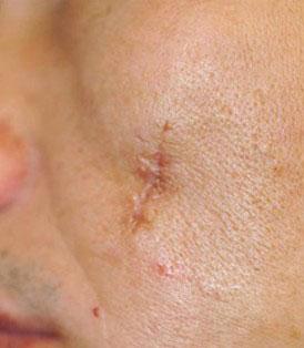 ترمیم ضایعات پوستی با لیرز 1422356008362