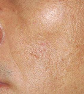 ترمیم ضایعات پوستی با لیرز 1422356008373