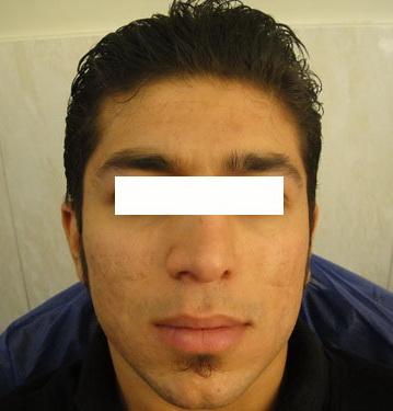ترمیم ضایعات پوستی با لیرز 1422356326671