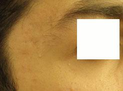 ترمیم ضایعات پوستی با لیرز 1422356326713