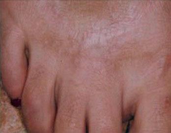 ترمیم ضایعات پوستی با لیرز 1422356326735