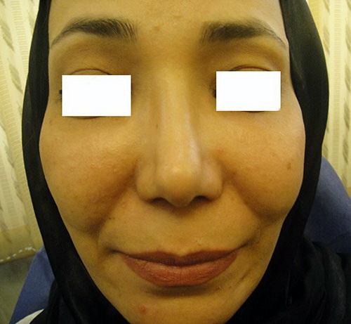 حجم دادن و پرکردن اعضاء صورت و بدن با ژل 1417726612942