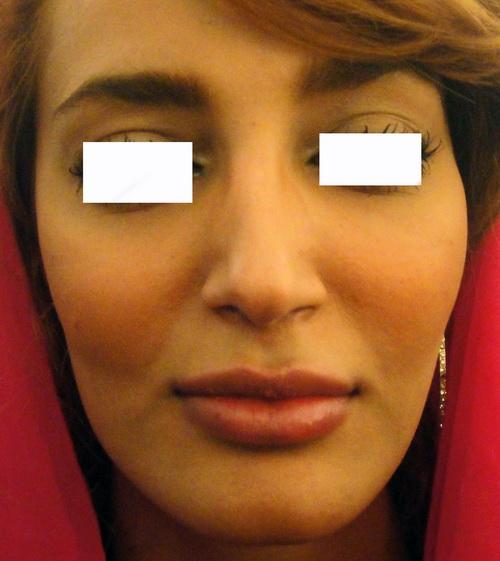 ژل فیلر  حجم دادن و پرکردن اعضاء صورت و بدن با ژل 1417726749841