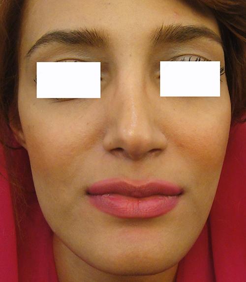 ژل فیلر  حجم دادن و پرکردن اعضاء صورت و بدن با ژل 1417726749882