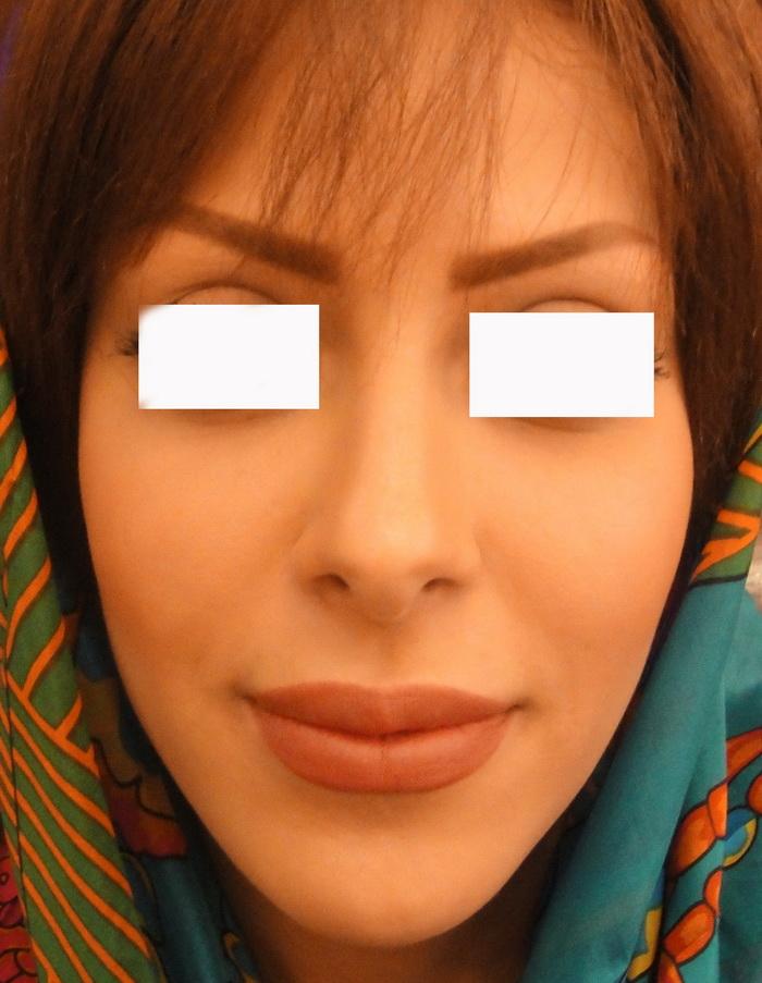 حجم دادن و پرکردن اعضاء صورت و بدن با ژل 1417726843751