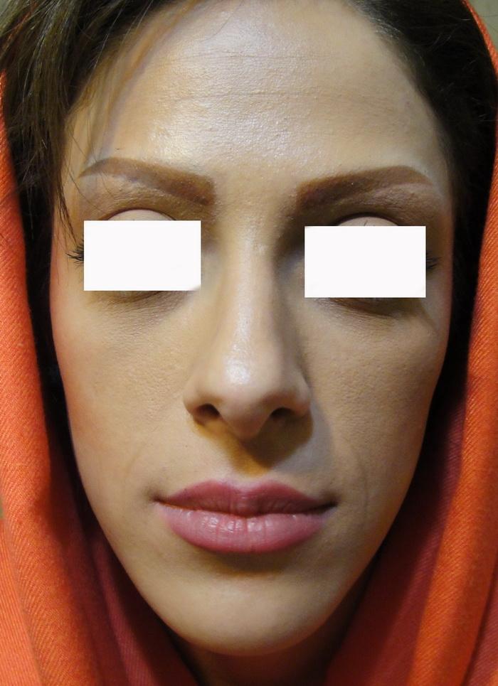 حجم دادن و پرکردن اعضاء صورت و بدن با ژل 1417726843862