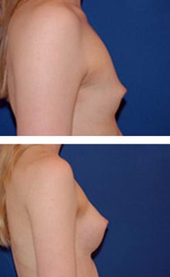 حجم دادن به سینه
