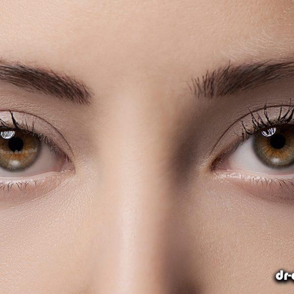 رفع گودی و سیاهی زیر چشم